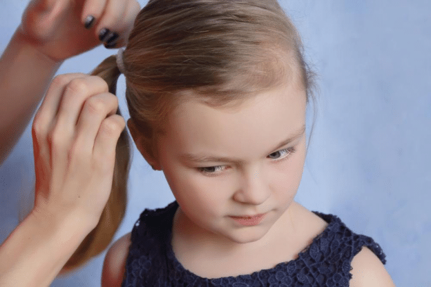 Is There A Natural Way To Treat Head Lice